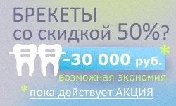 braces_50_2